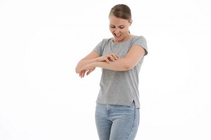 midges bites cause irritation